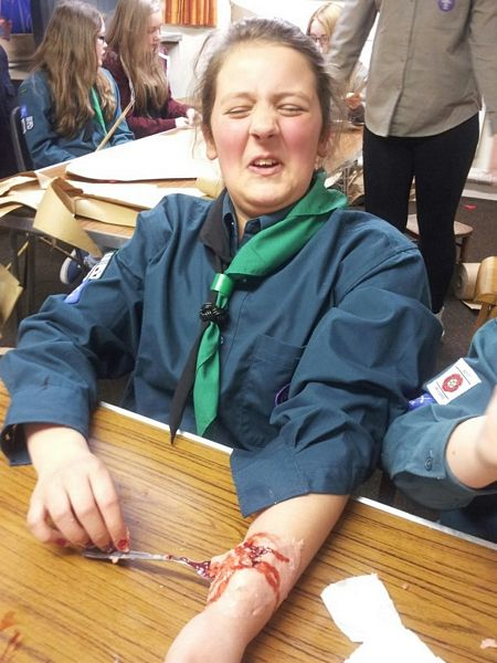 Horrible Injuries | 5th Penwortham URC Scout Group